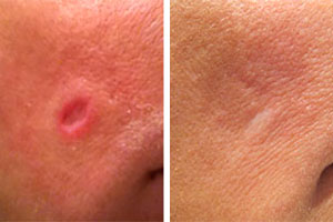 Wart scars removal