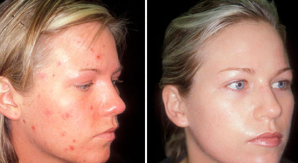 Cystic acne - Before and After Treatment