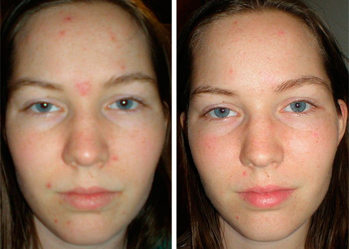 Face acne - Before and After Treatment