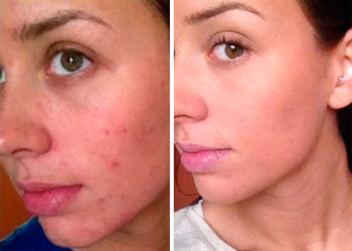 Acne on face - Before and After Treatment