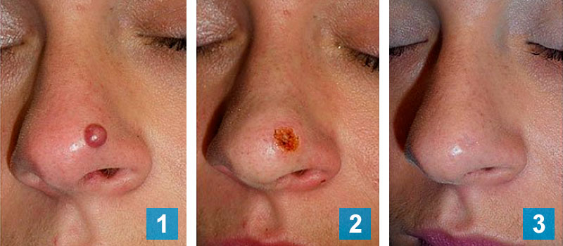 Mole treatment 3 stages