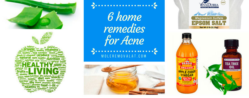 Infographic: 6 Home Remedies for Acne