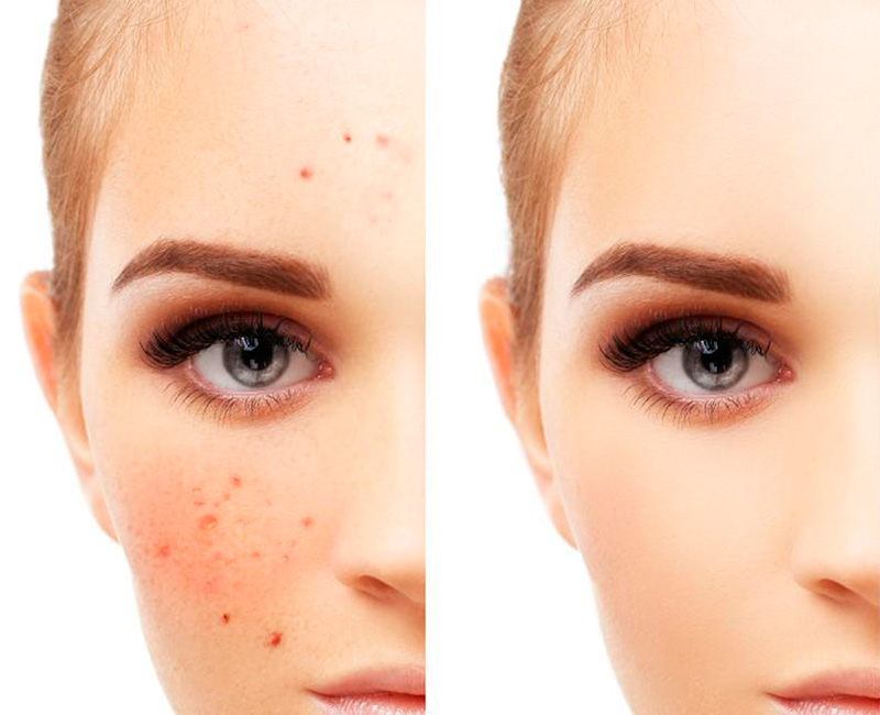 Acne treatment results: before and after