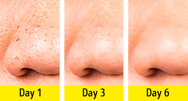 6 days of acne treatment