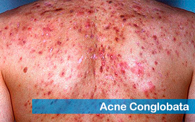 Acne Conglobata Type