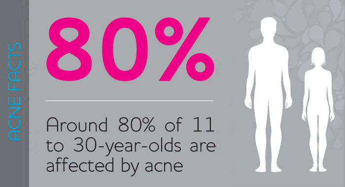 Acne facts