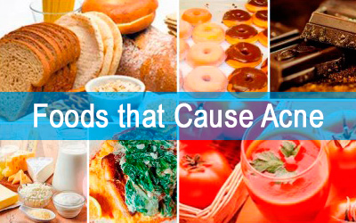 Top 6 foods that cause acne