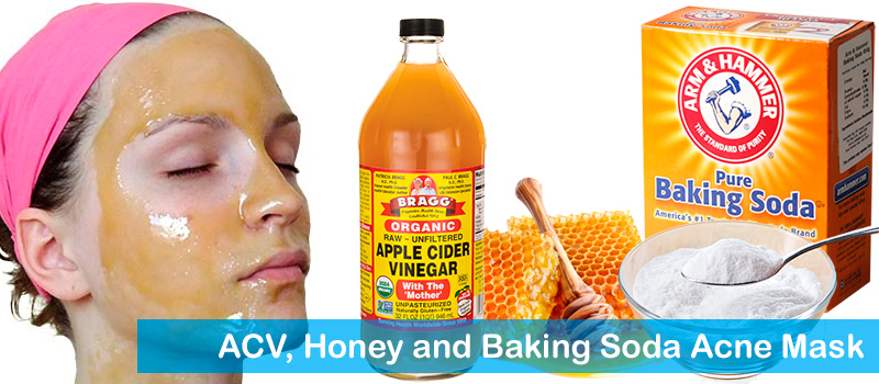 ACV, honey and baking soda acne mask