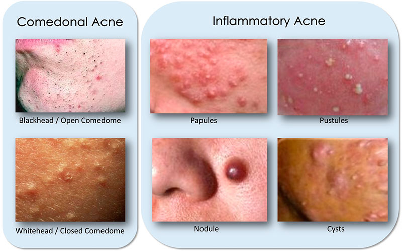 Types of Acne Lesions