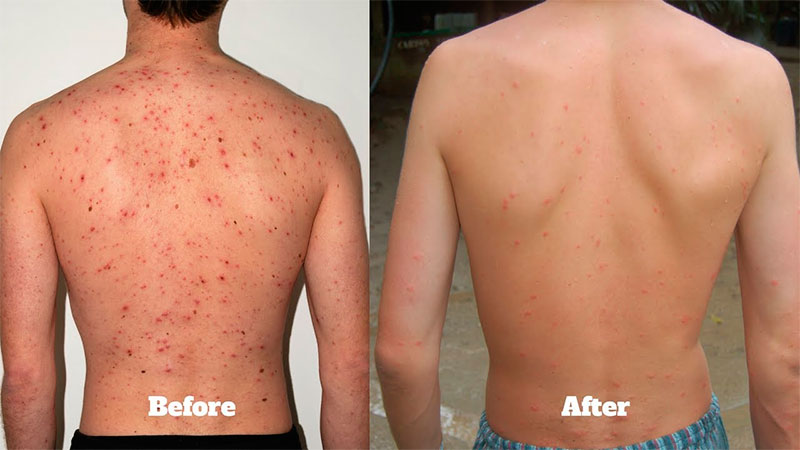 Using ACV for Bacne: Before and After