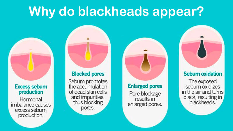 Whay do blackheads appear?