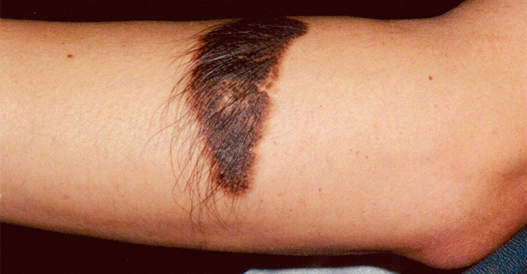 Congenital Hairy Nevi on arm