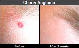 Cherry angioma: before and after home treatment