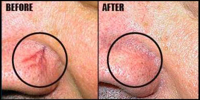 Cherry angioma before and after surgical removal