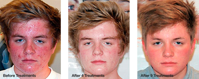 Teenage Acne Treatment: Before and After
