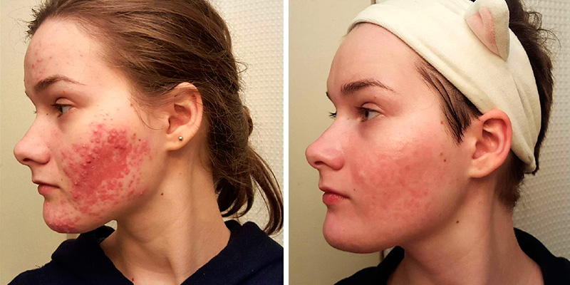 Honey acne treatment: before and after