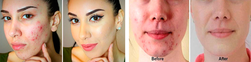 Before and after honey acne treatment
