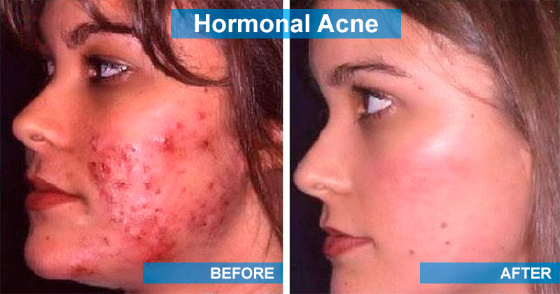 Hormonal acne: before and after treatment