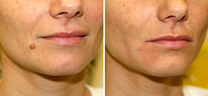 Before & after mole treatment