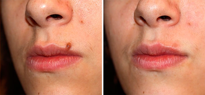 Before and after mole removal