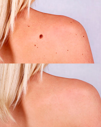 Before and after: moles removal