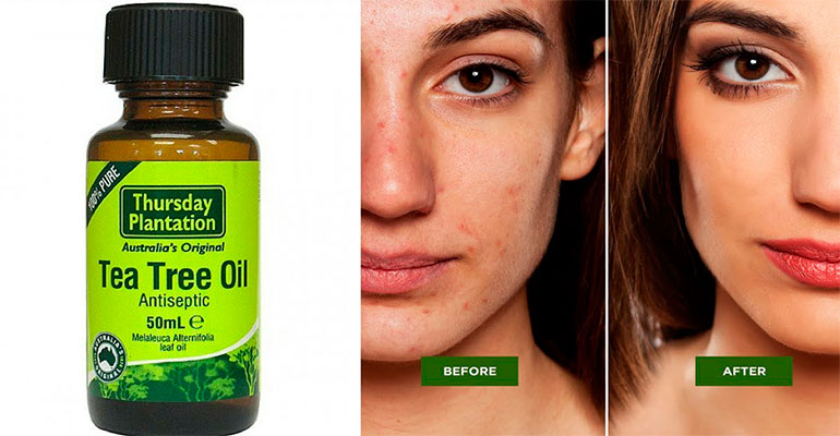 Before and after tea tree oil using