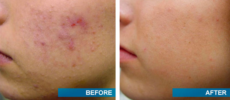 Toothpaste Acne Treatment: Before and After