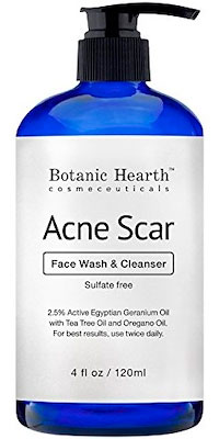 Acne Scar Face Wash & Cleanser by Botanic Hearth Cosmeceuticals