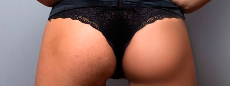 Butt Acne Scars
