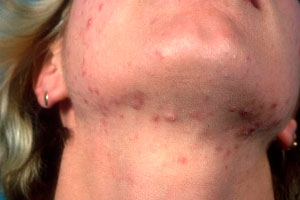 Neck and chin acne