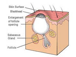 Open Comedo (Blackhead)