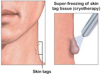 Cryotherapy for skin tags