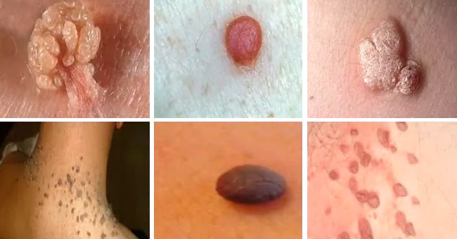 Dangerous moles and warts