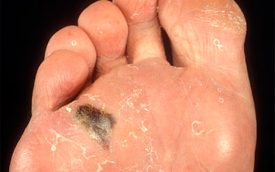 Foot melanoma