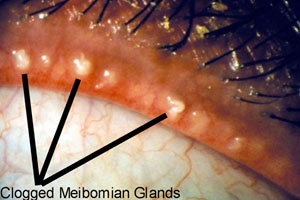 Clogged Meibomian Glands