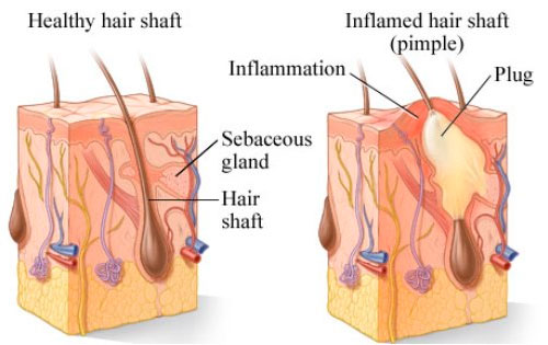 Healthy and inflamed hair shaft (pimple)