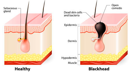 Healthy skin and blackhead