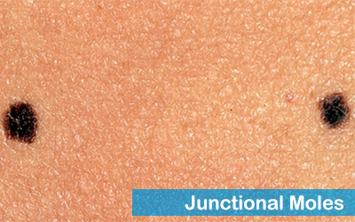 Junctional moles