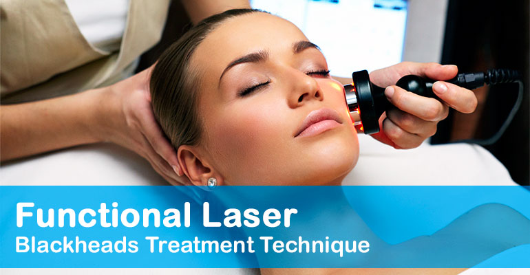 Laser blackheads treatment