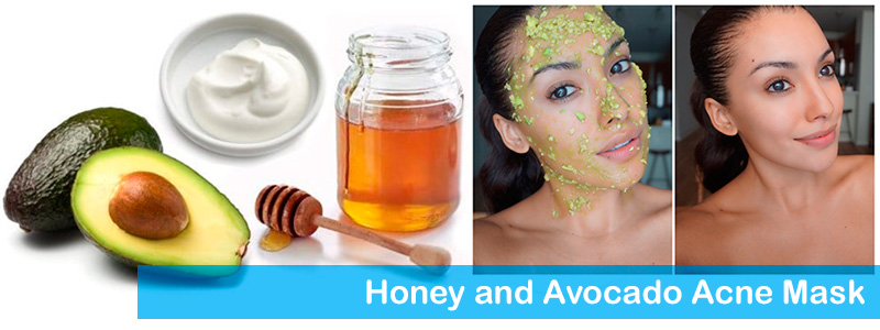 Honey and Avocado Acne Mask