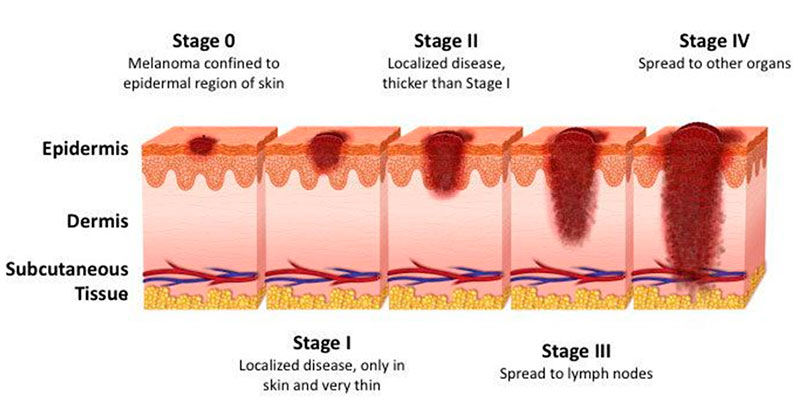 5 Stages of Melanoma