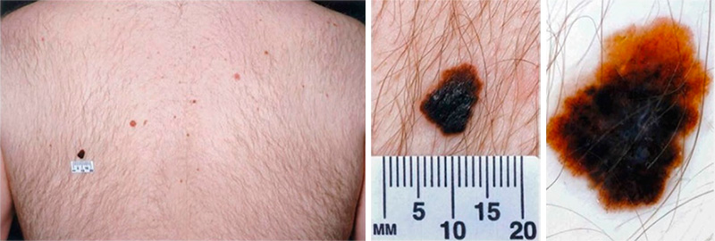 Size of a mole