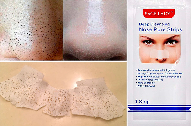 Nose Pore Strips: Before and After
