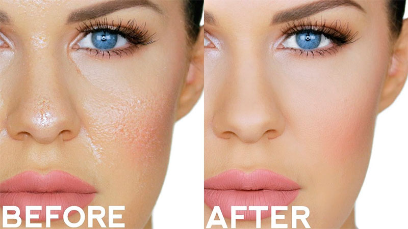 Oily skin before and after treatment