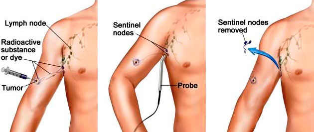 Sentinel Lymph Node Biopsy of the Skin