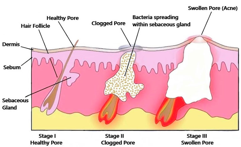 Acne Formation Stages