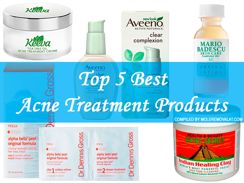 Top 5 Best Acne Treatment Products
