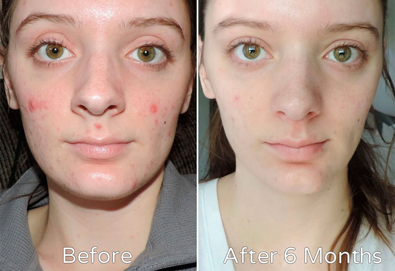 Acne before and after using Tretinoin in 6 months