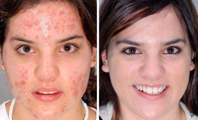 Using tretinoin for acne: before and after